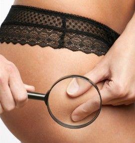 Alimentos Para Combatir La Celulitis Dura