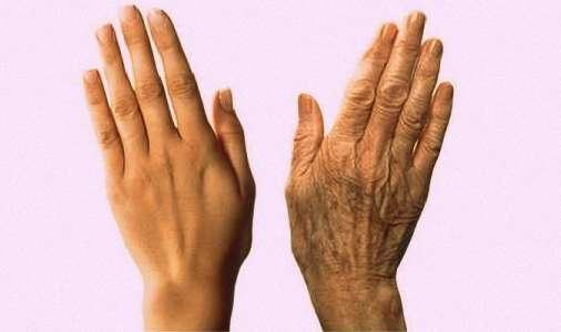 Como Tener Las Manos Suaves y Sin Arrugas