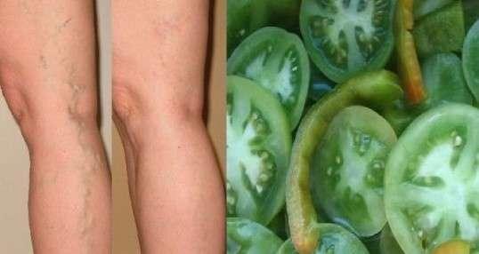 Como curar las varices
