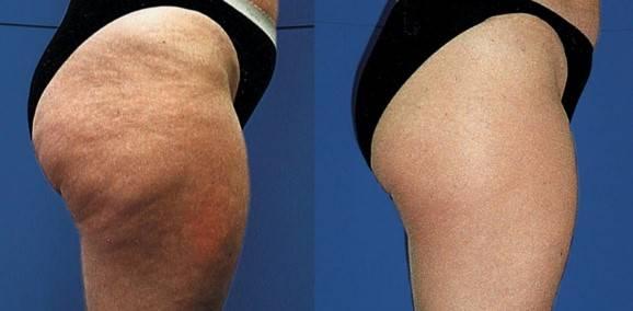 Cual Es El Mejor Tratamiento Estetico Para Eliminar La Celulitis
